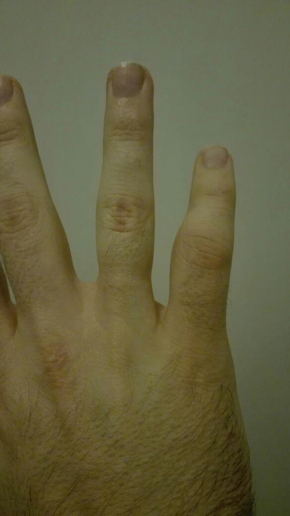 Finger kapselriss im Kapselriss operieren